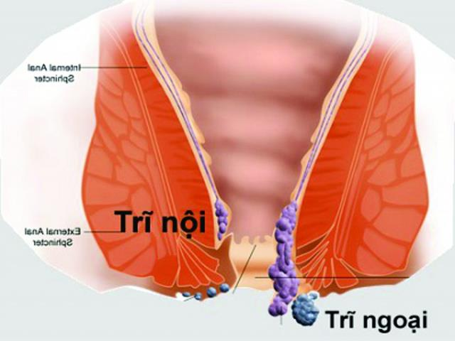 22. Bệnh trĩ nội (2)